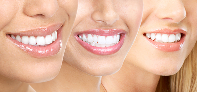 Achieve whiter, brighter smile in only one hour!