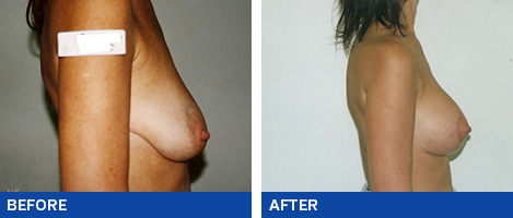 Breast Reduction / Lift