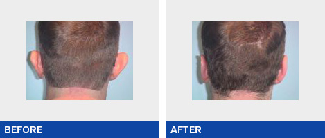Ear Surgery / Otoplasty
