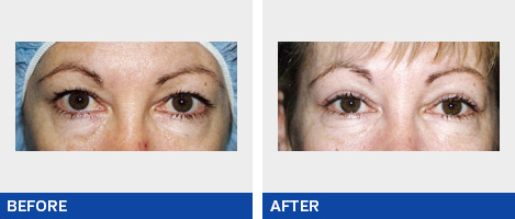 Eyelift surgery / Blepharoplasty