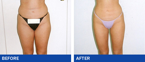 Liposuction-Liposcultpure15
