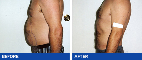 Liposuction Brisbane & Gold Coast