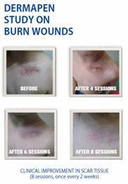 dermapen-burn-wound