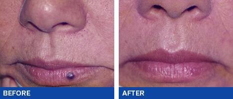 Mole Removal Brisbane Amp Gold Coast Qld Ashbury Cosmetics