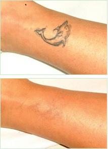 tattoo-removal
