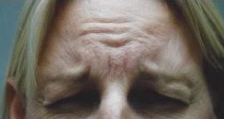 Anti-Wrinkle Treatment Brisbane & Gold Coast