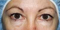 Blepharoplasty Brisbane & Gold Coast