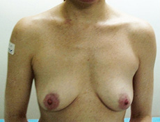 Breast Implants Brisbane & Gold Coast