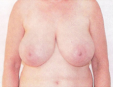 Breast Reduction and Lift Brisbane & Gold Coast