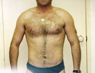 Male Breast Reduction Brisbane & Gold Coast