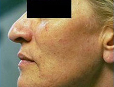 Laser Skin Rejuvenation Brisbane & Gold Coast