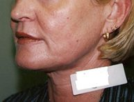 Laser Skin Resurfacing Brisbane & Gold Coast
