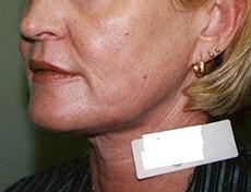 Laser Skin Resurfacing Brisbane & Gold Coast