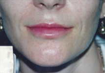 Dermal & Lip Fillers Brisbane & Gold Coast