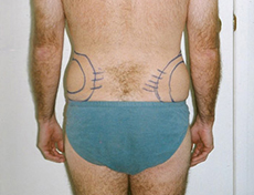 Liposuction / Liposculpture Brisbane & Gold Coast