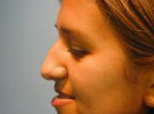 Rhinoplasty Brisbane & Gold Coast