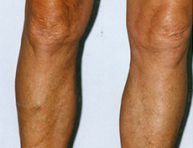Non-surgical varicose and spider veins treatment